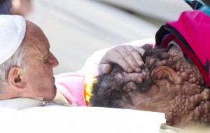 Pope Francis with disfigured man